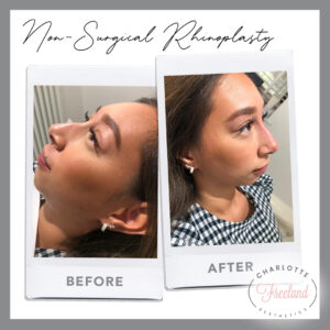Non Surgical Rhinoplasty 21 Sep 2020
